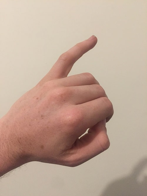 Degetul mic